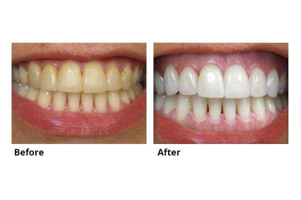 kids teeth fillings crowns bridges veneer whitening